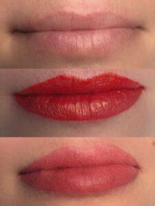 Lippigmentatie